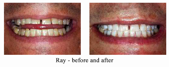 Tooth Whitening before and after