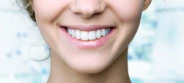 Tooth Whitening Los Gatos