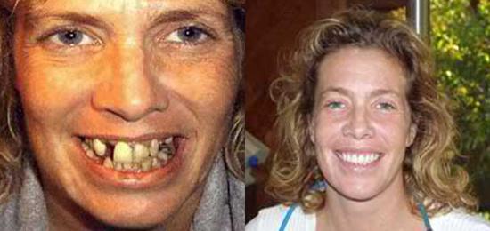 Dental Implants Los Gatos