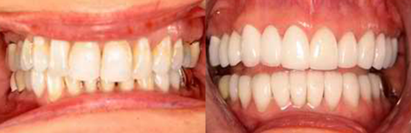 Los Gatos Dentist