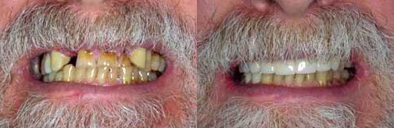 Dentist in Los Gatos