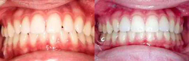 Los Gatos Family Dentistry